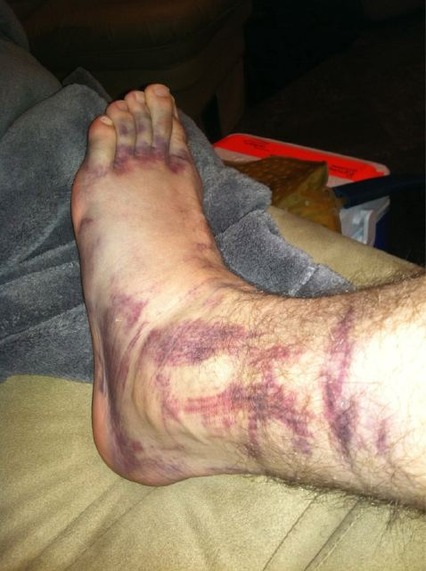 Brad Keselowski's technicolor foot after Road Atlanta testing crash.