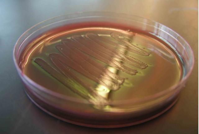 E. Coli bacteria the next source of biofuel? (Image: adonofrio Biology101.org on Flickr)